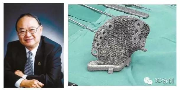 3D打印改变医学——新技术 新福祉